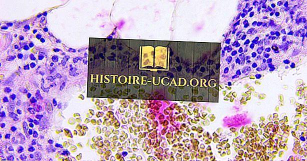 المجتمع - حقائق التهاب الزائدة الدودية: أمراض العالم