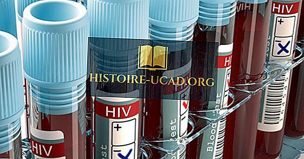 Amerikanske byer ved hiv diagnoser
